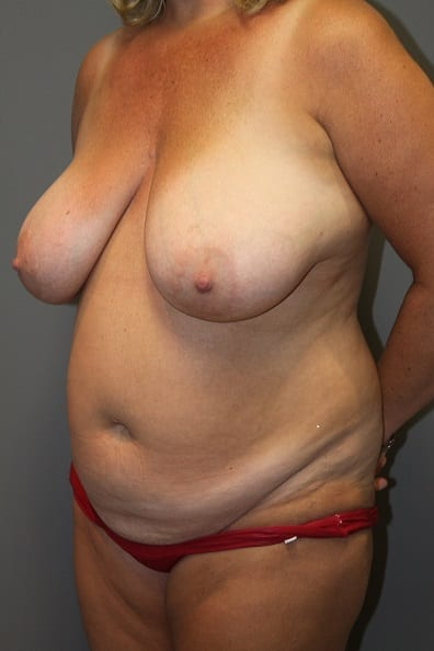 Breast Reduction Patient Photo - Case 36 - before view-1