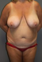 Breast Reduction - Case 36 - Before