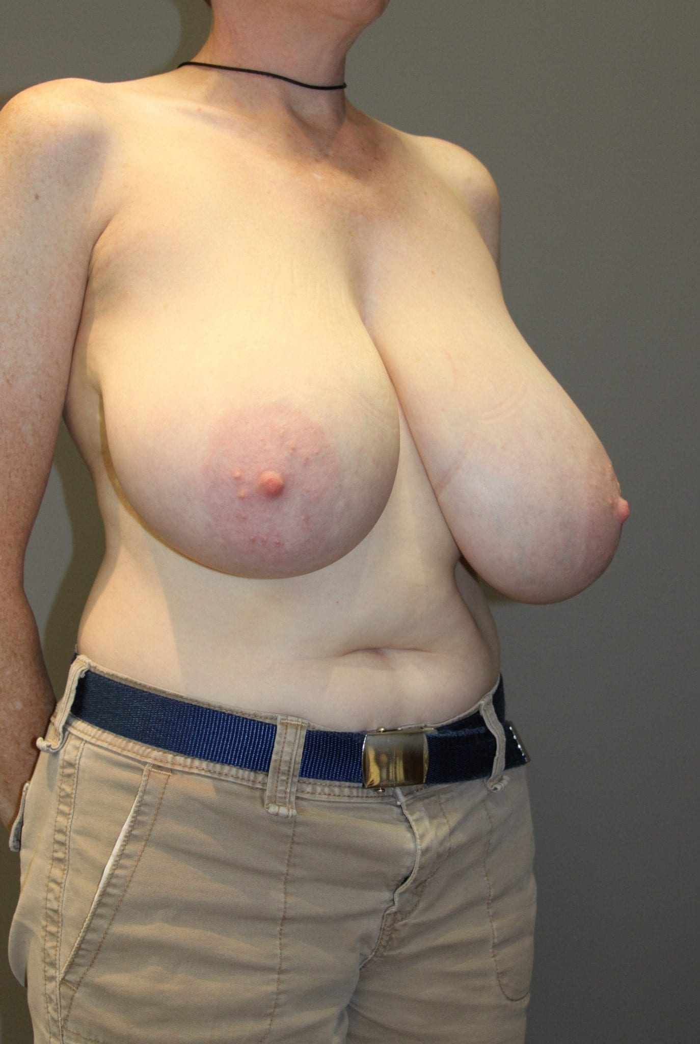 Breast Reduction Patient Photo - Case 76 - before view-