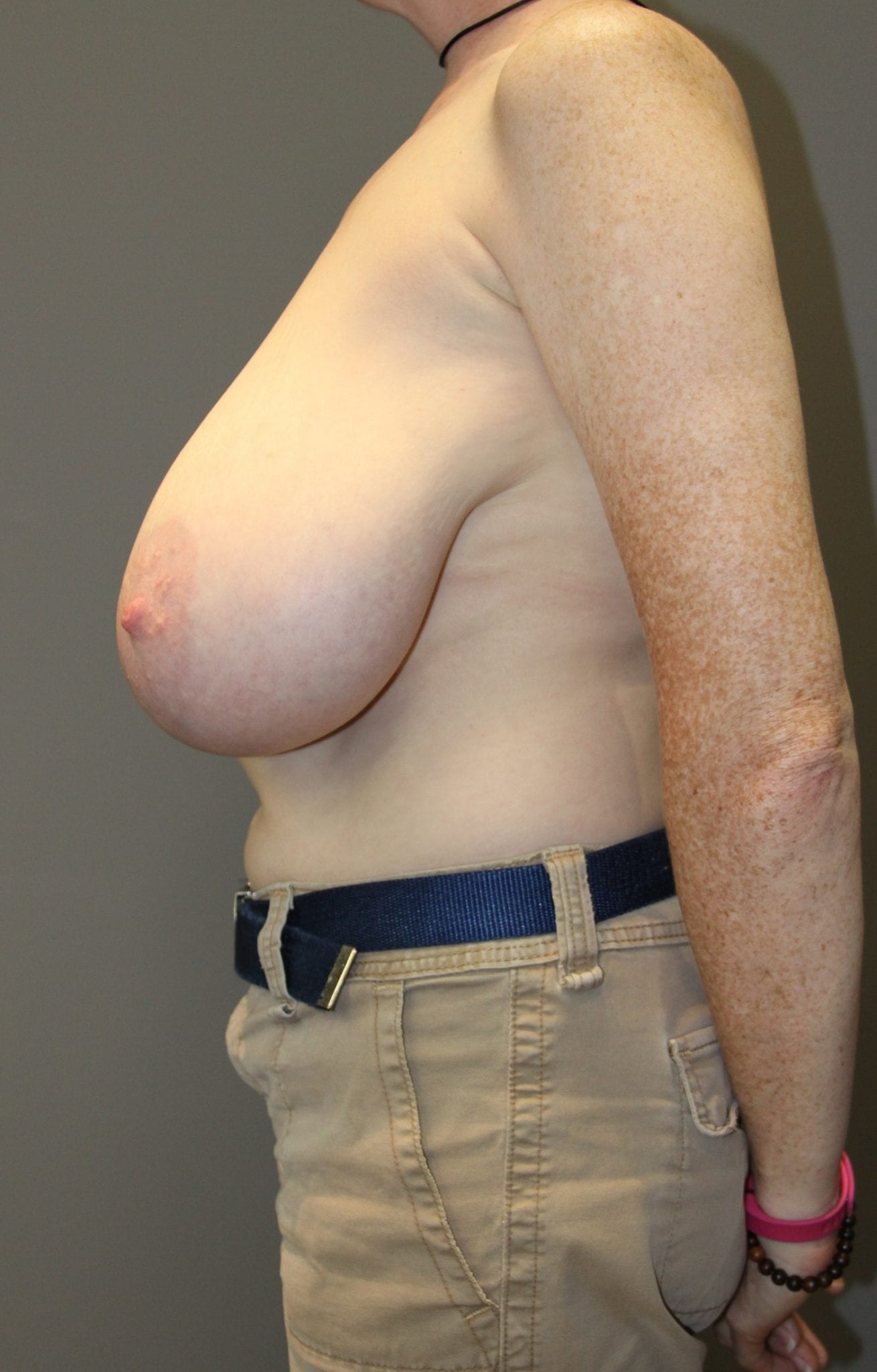 Breast Reduction Patient Photo - Case 76 - before view-2