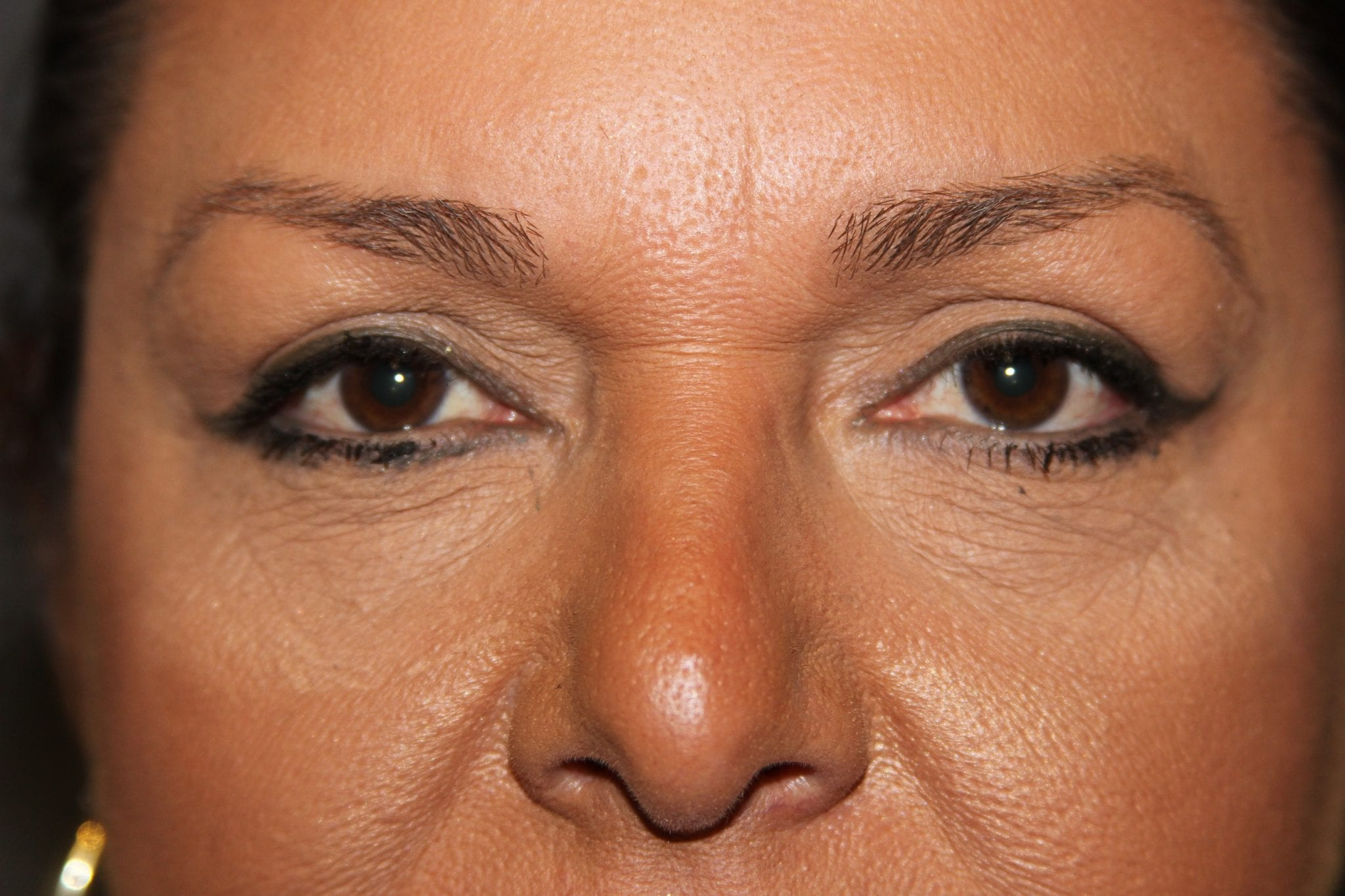 Upper Face Patient Photo - Case 121 - after view-1