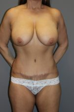 Tummy Tuck - Case 134 - After