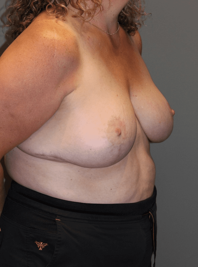 Breast Reduction Patient Photo - Case 136 - after view
